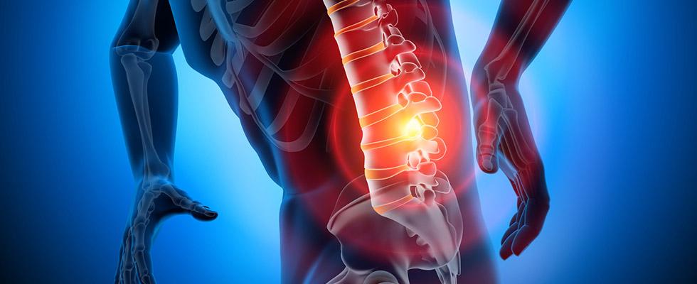 Chronic Pain Handbook: Herniated Disk